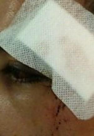 L'occhio di Simone dopo l'aggressione