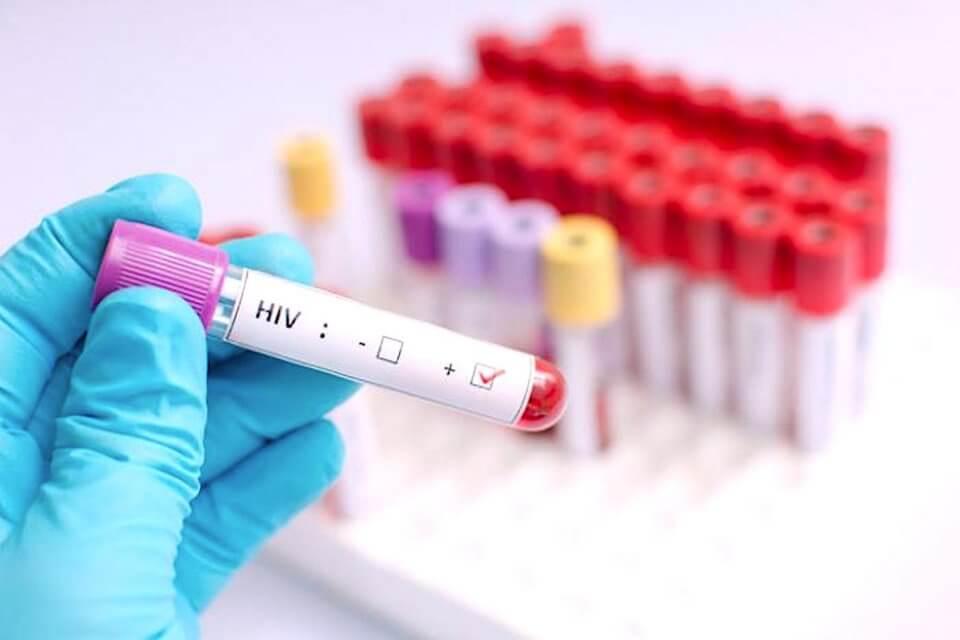 hiv gene