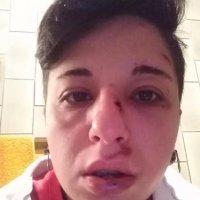 Potenza, ragazza lesbica picchiata in strada: pugni, testate e calci da due teppisti